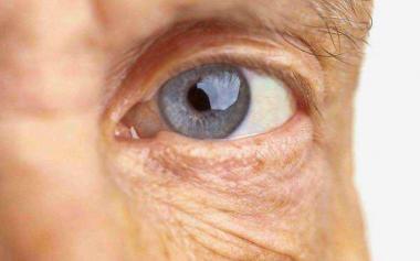 血脂高不高,眼睛先知道?眼部这3种现象提示你的血脂高了