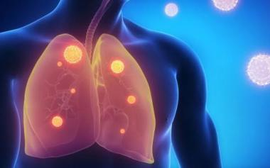如何更早发现肺癌?得了肺癌,身体会出现7个症状