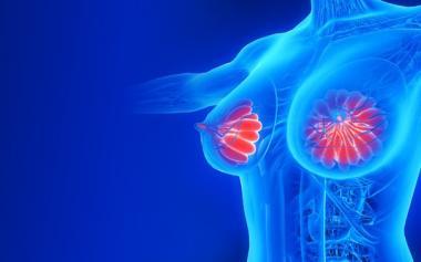 怀孕7个月,女子竟患乳腺癌!做对9件事,癌细胞远离你