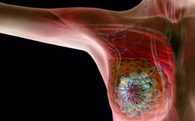 香港女星金燕玲自曝确诊乳腺癌,庆幸自己发现早